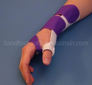 Immobilization splint